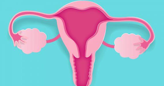 como saber si tengo endometriosis