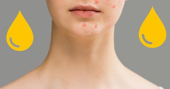 la-orina-puede-curar-el-acne