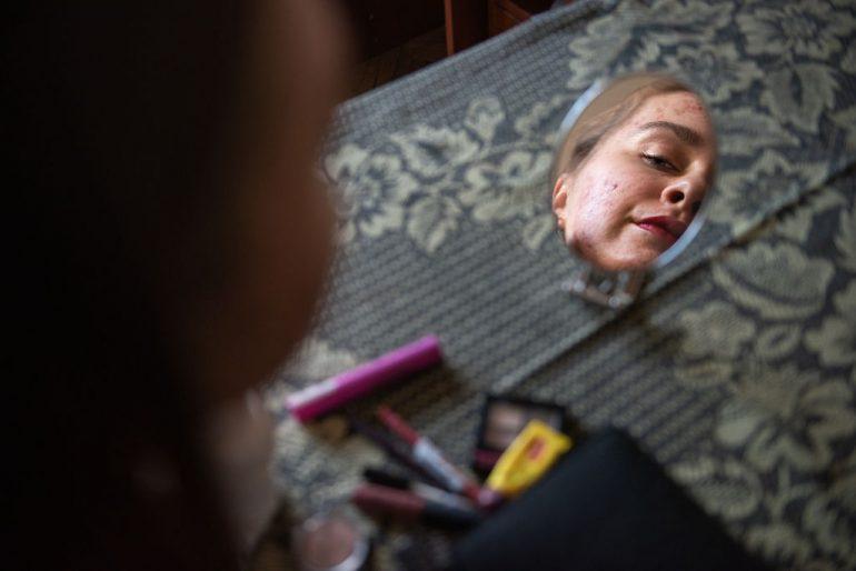 Maskné Acné por usar cubrebocas espejo