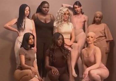Joven de 27 años con alopecia consigue trabajo como modelo