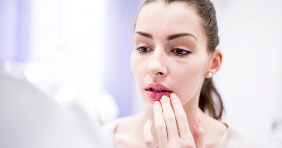 5 cosas que le ocurren a tus labios con el frío