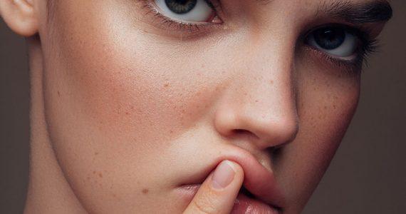 herpes labial cómo evitarlo en invierno
