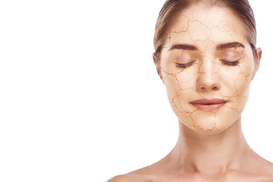 ¿Conoces la diferencia entre piel seca y piel deshidratada?