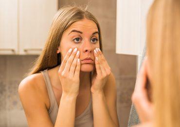 ¿Bolsas y ojeras? Te dejamos 8 tips para mejorar el aspecto de tu mirada