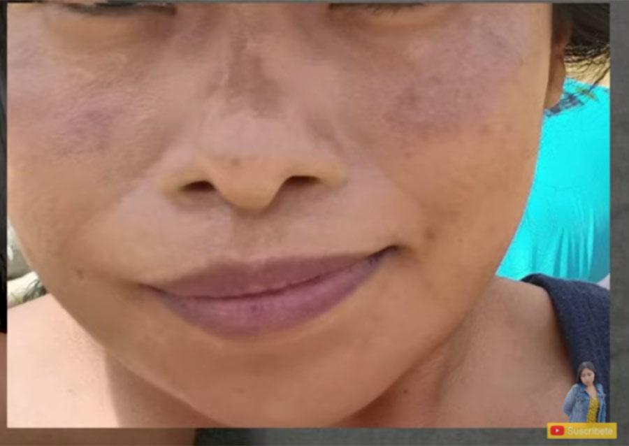 Yalitza Aparicio revela que tiene una enfermedad en la piel que ha cambiado su aspecto