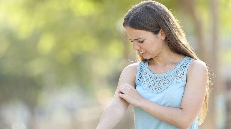 picaduras de mosquitos lo que debes saber para protegerte
